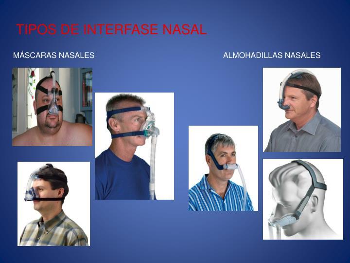 TIPOS DE INTERFASE NASAL