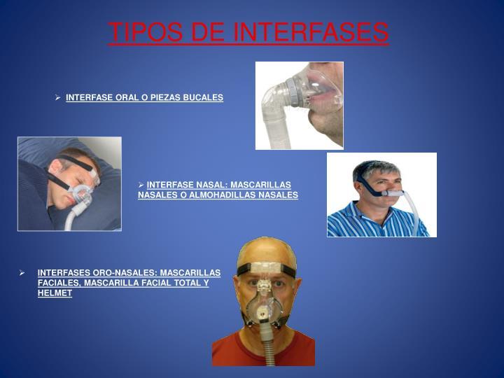 TIPOS DE INTERFASES
