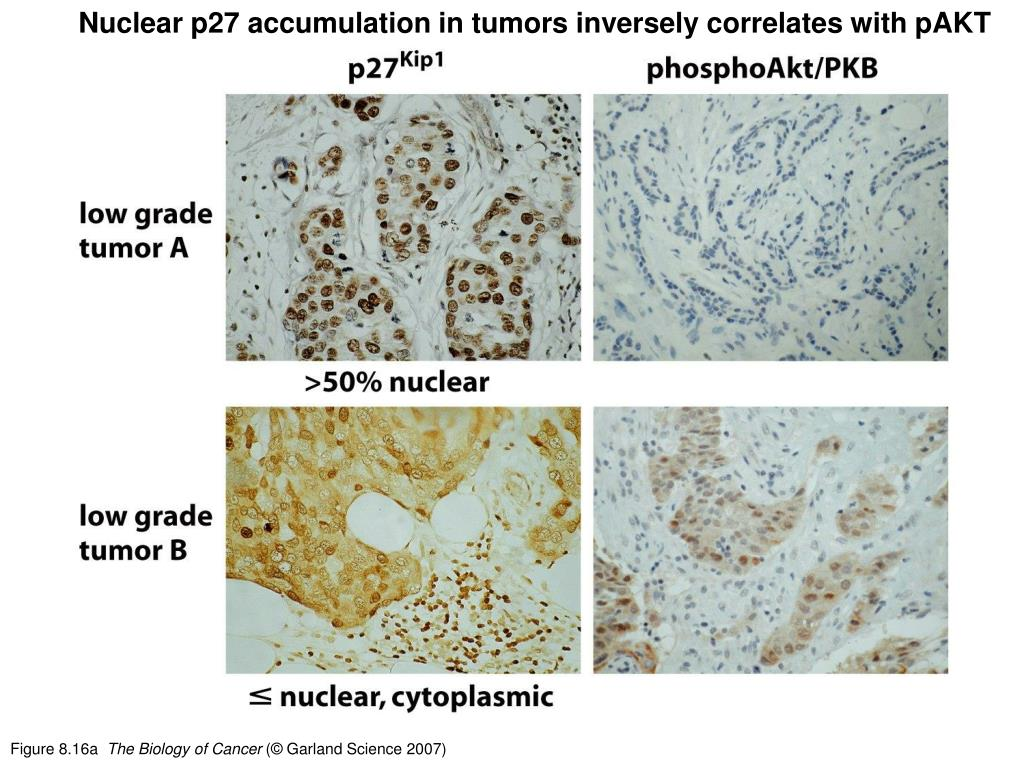 Nuclear p27 accumulation in tumors inversely correlates with pAKT