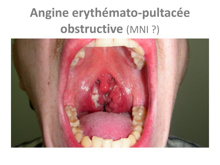 Angine erythémato-pultacée obstructive