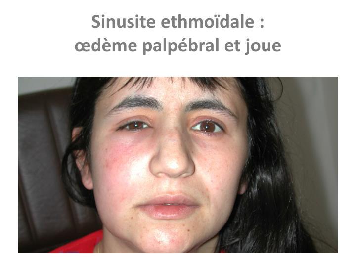 Sinusite ethmoïdale :