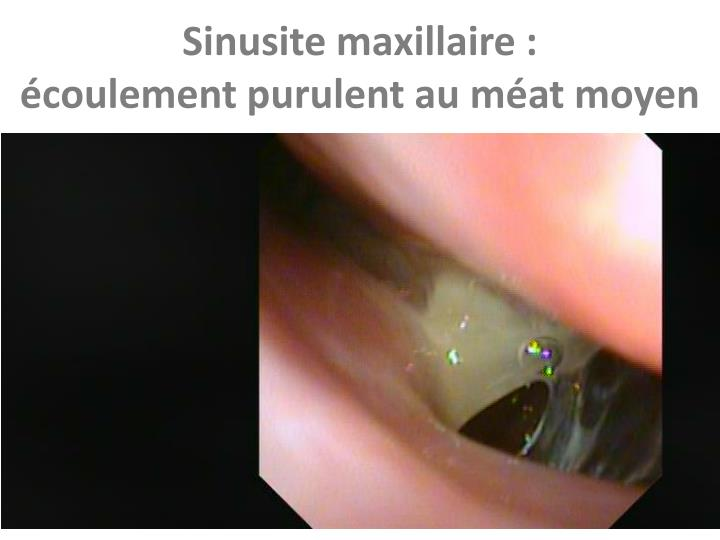 Sinusite maxillaire :
