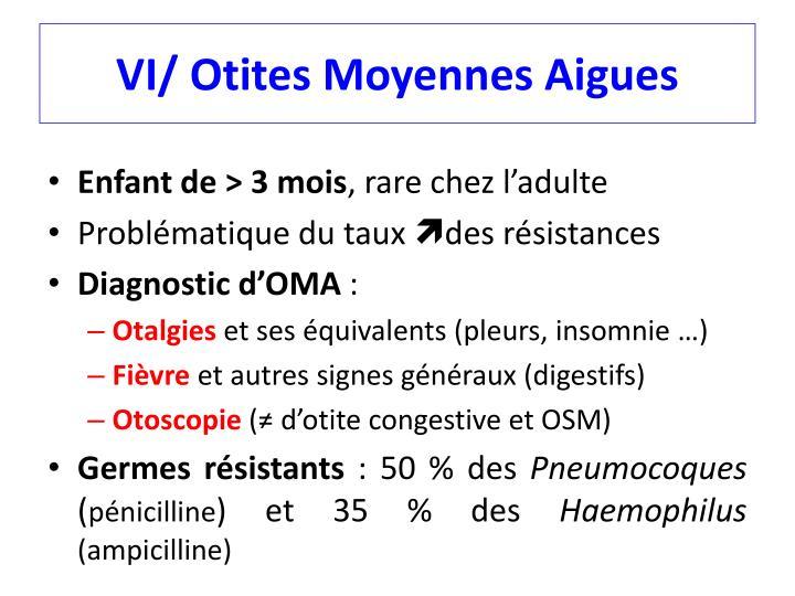 VI/ Otites Moyennes Aigues