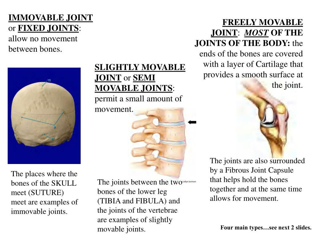 IMMOVABLE JOINT