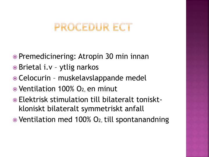 Procedur ECT