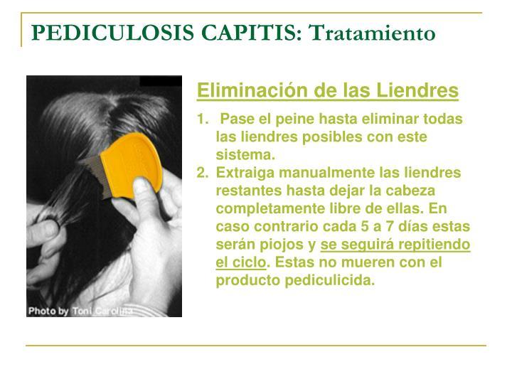 PEDICULOSIS CAPITIS: Tratamiento