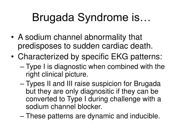 Brugada Syndrome is…