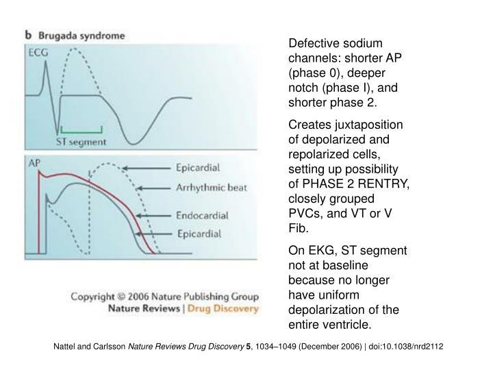 Defective sodium channels: shorter AP (phase 0), deeper notch (phase I), and shorter phase 2.