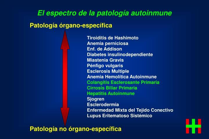 El espectro de la patología autoinmune