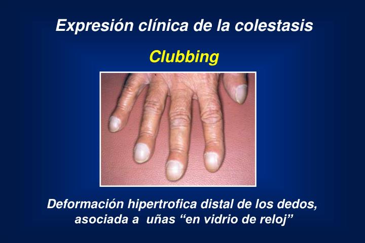 Expresión clínica de la colestasis