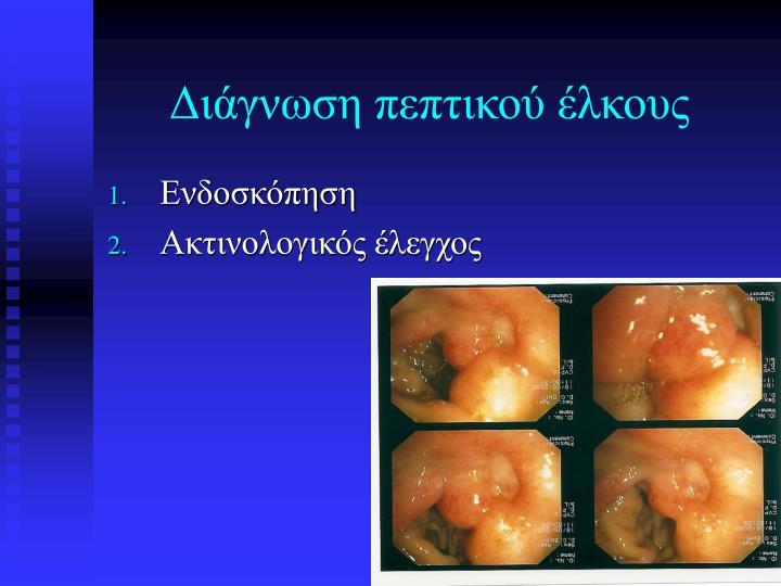Διάγνωση πεπτικού έλκους
