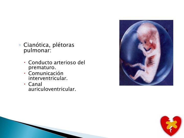 Cianótica, plétoras pulmonar: