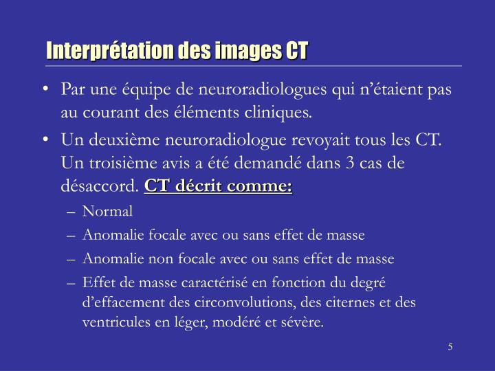 Interprétation des images CT