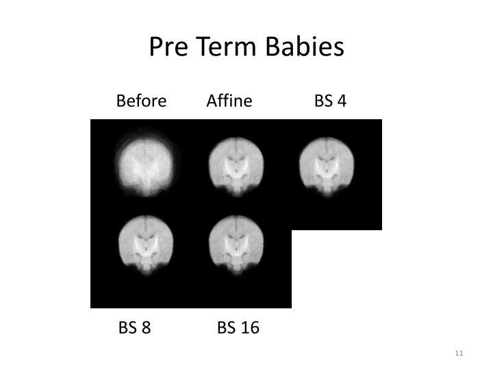 Pre Term Babies