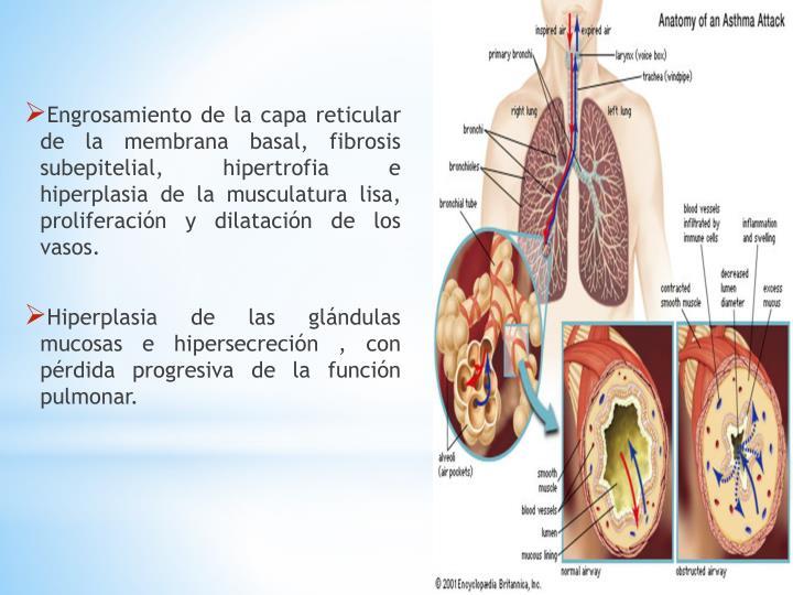 Engrosamiento de la capa reticular de la membrana basal, fibrosis