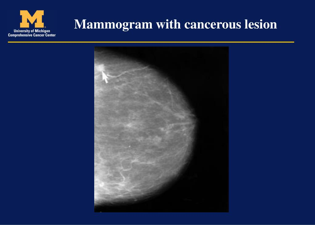 Mammogram with cancerous lesion