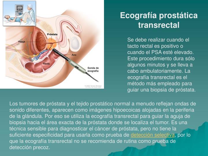 Ecografía prostática transrectal