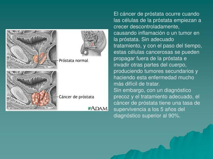 El cáncer de próstata ocurre cuando las células de la próstata empiezan a crecer descontroladamente, causando inflamación o un tumor en la próstata. Sin adecuado tratamiento, y con el paso del tiempo, estas células cancerosas se pueden propagar fuera de la próstata e invadir otras partes del cuerpo, produciendo tumores secundarios y haciendo esta enfermedad mucho más difícil de tratar.