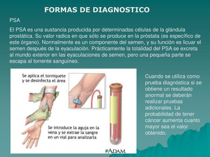 FORMAS DE DIAGNOSTICO