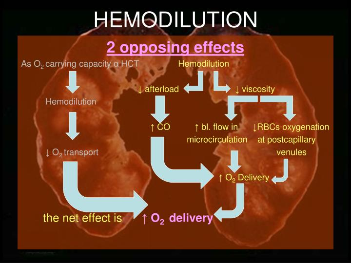 HEMODILUTION