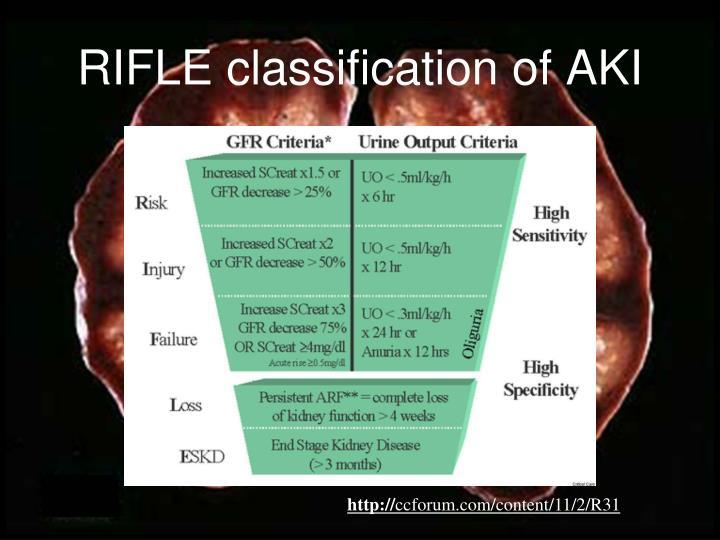 RIFLE classification of AKI