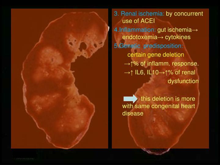 3. Renal ischemia: