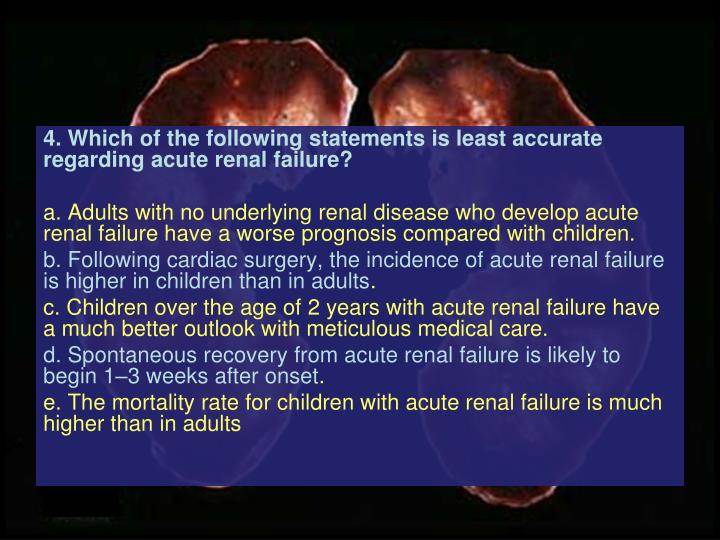 4. Which of the following statements is least accurate regarding acute renal failure?