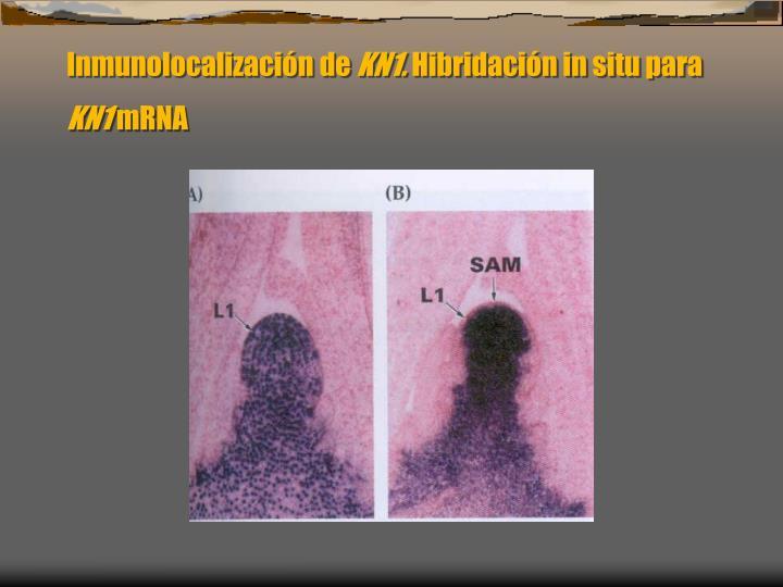 Inmunolocalizacin de