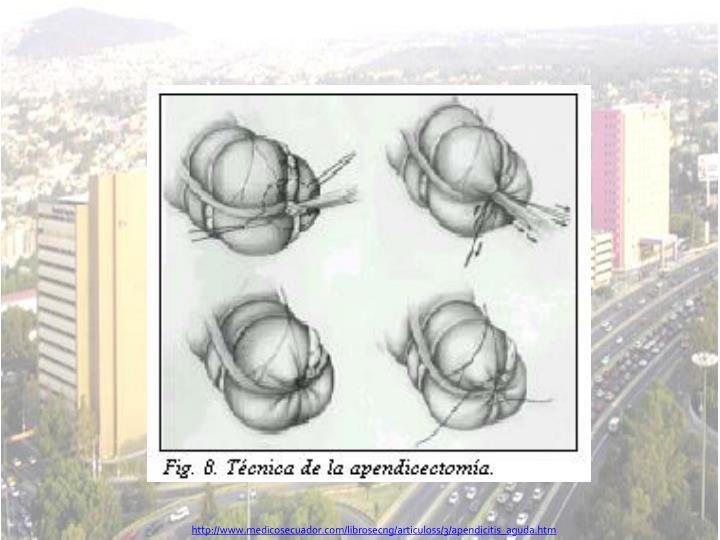 http://www.medicosecuador.com/librosecng/articuloss/3/apendicitis_aguda.htm