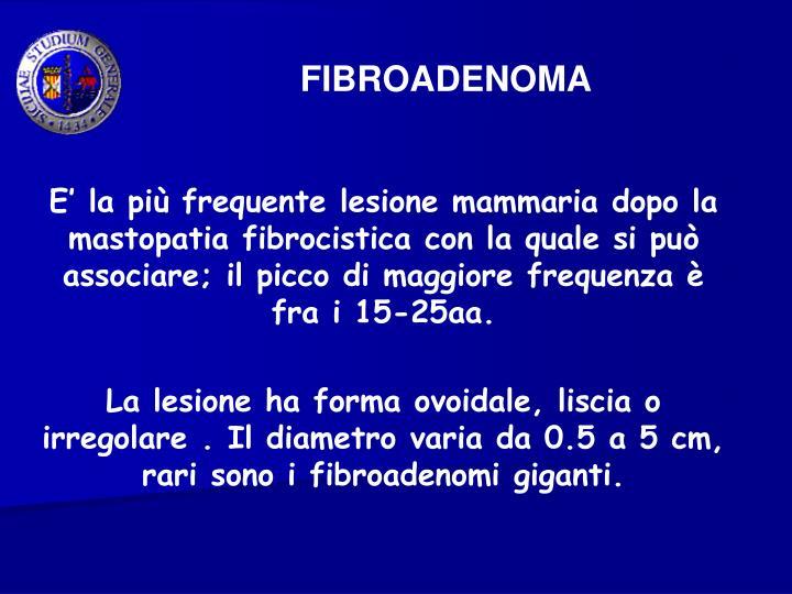 FIBROADENOMA