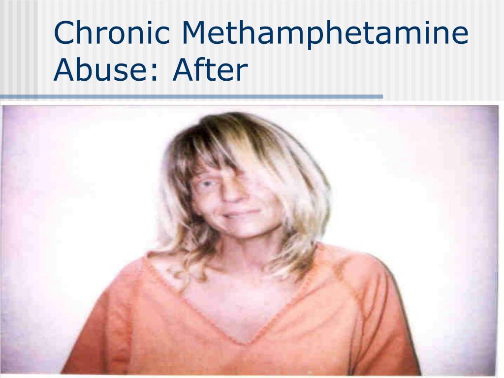 Chronic Methamphetamine Abuse: After