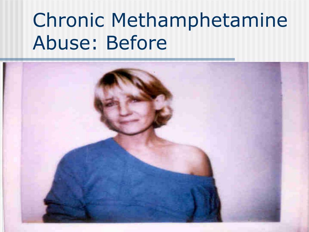 Chronic Methamphetamine Abuse: Before