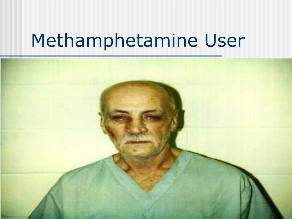 Methamphetamine User