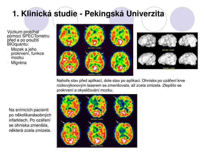 1. Klinická studie - Pekingská Univerzita