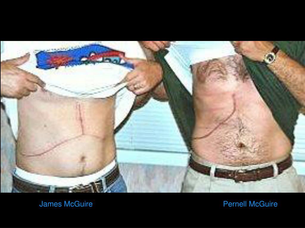 James McGuire