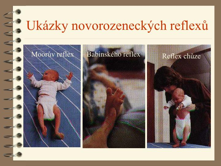 Moorův reflex