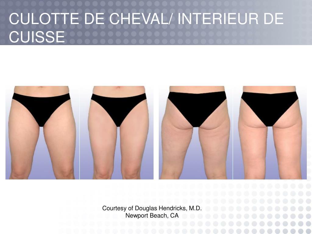 CULOTTE DE CHEVAL/ INTERIEUR DE CUISSE