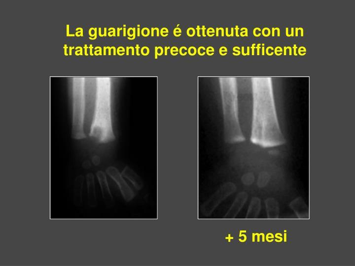 La guarigione é ottenuta con un trattamento precoce e sufficente