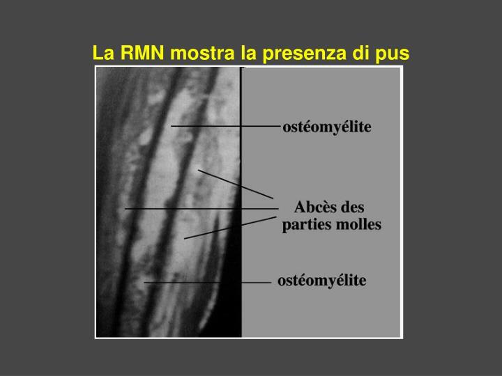 La RMN mostra la presenza di pus