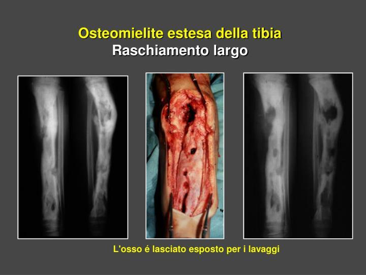 Osteomielite estesa della tibia