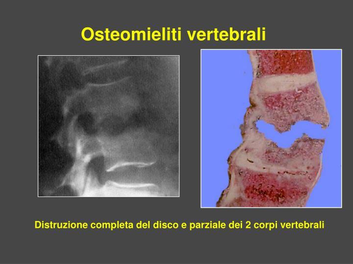 Osteomieliti vertebrali