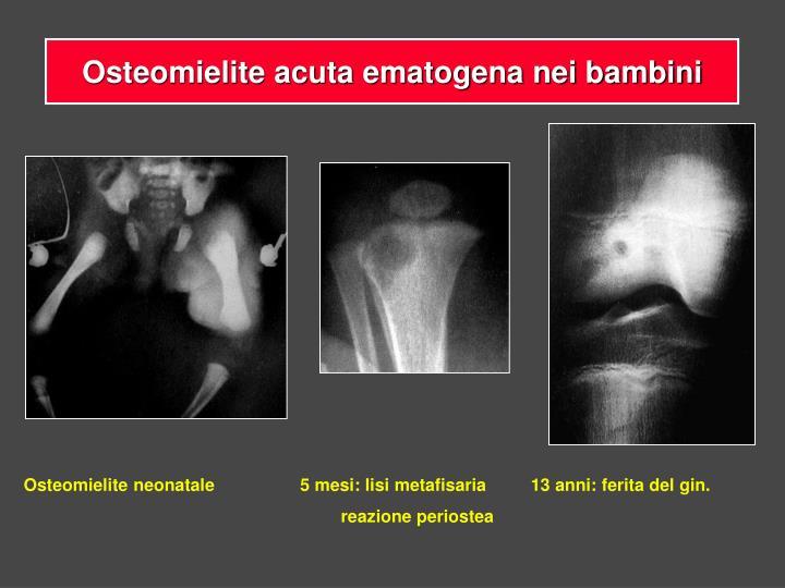 Osteomielite acuta ematogena nei bambini