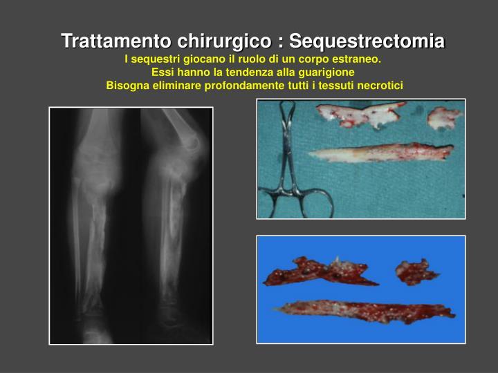 Trattamento chirurgico : Sequestrectomia