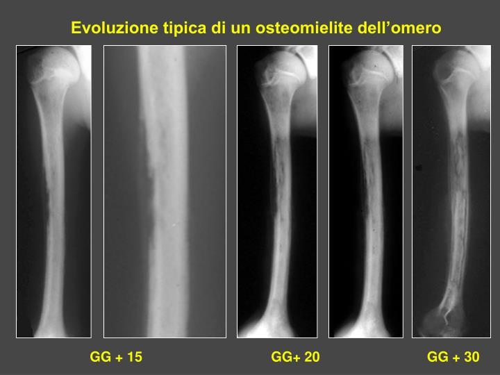 Evoluzione tipica di un osteomielite dell'omero