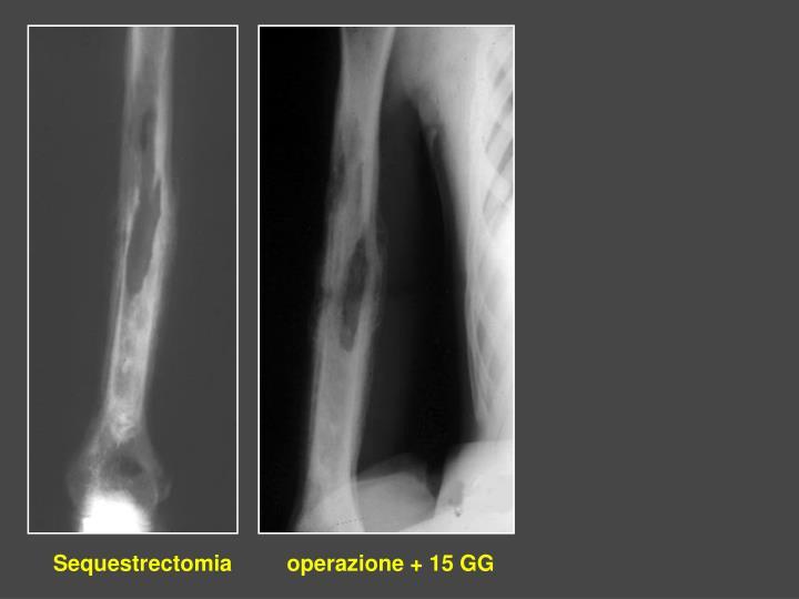 Sequestrectomia         operazione + 15 GG