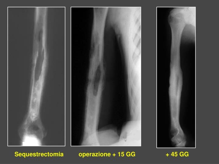 Sequestrectomia         operazione + 15 GG                + 45 GG