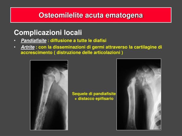 Osteomilelite acuta ematogena