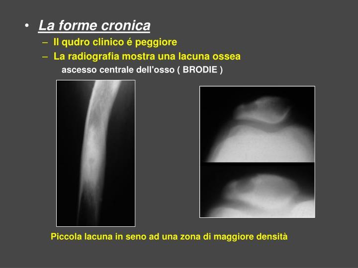 La forme cronica