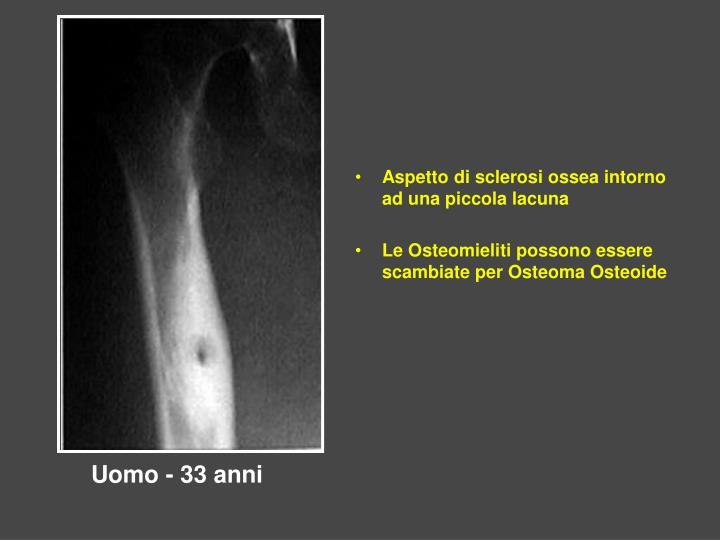 Aspetto di sclerosi ossea intorno ad una piccola lacuna