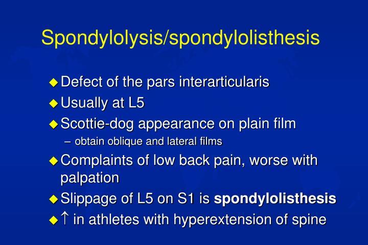 Spondylolysis/spondylolisthesis